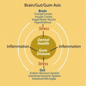 Gum disease1 copy