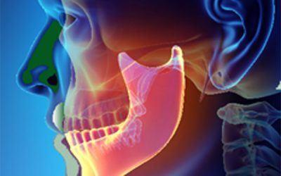 Seasonal Stress, Dental Health and Jaw Pain – Part 2