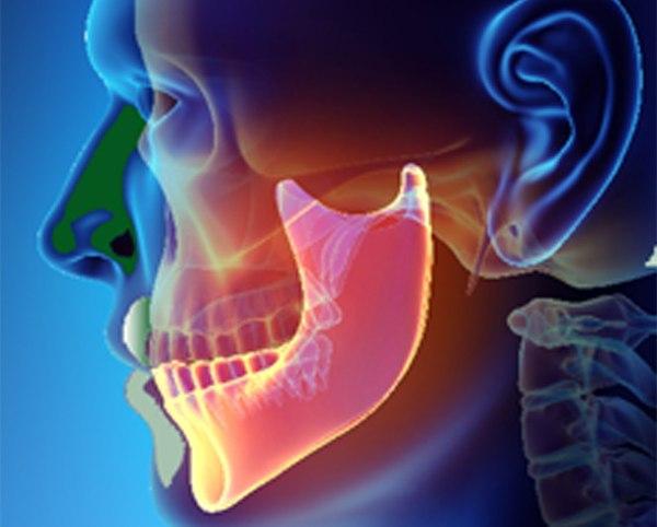 temperomandibular joint dysfunction