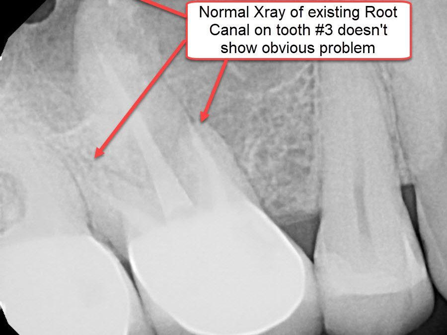 Xray of Existing Root Canal