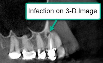 What To Do About Old Root Canal Infections – A Case Study