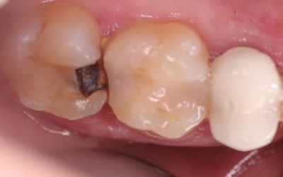 How I Treat Deep Cavities to Prevent Root Canal Infection – A Case Study