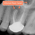X-ray of infected tooth